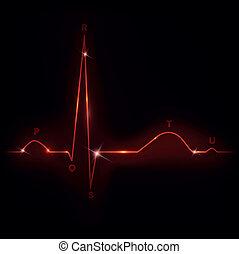 Normal heart cardiogram