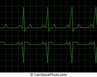 Normal Heart Rhythm electrocardiogram ECG graph with black...