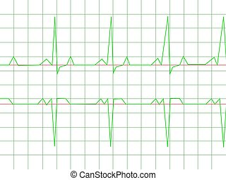 Normal Heart Rhythm electrocardiogram ECG graph with white...