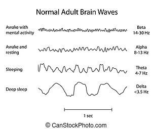 normal, hjerne vinker, eeg., eps8