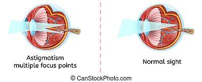 Normal Human Eye Sight and Astigmatism Scheme
