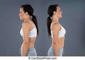 normal, mujer, curvatura, kyphosis