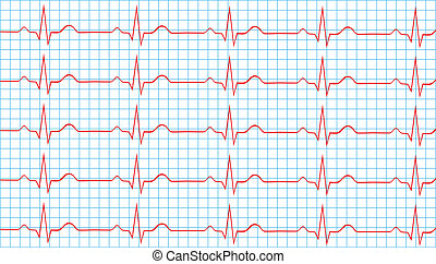 Normal Sinus Rhythm - Heart Normal Sinus Rhythm On...