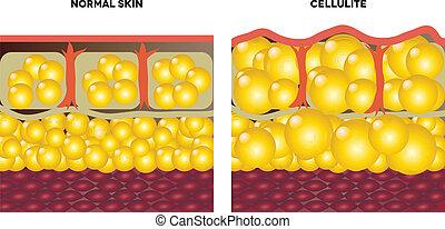normalny, cellulite, skóra