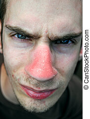 Nose Sunburn - This unfortunate suffering young male has...