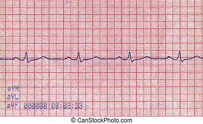 novo, cardiovascular, doppler, diagrama, pacient, tensão, conceito