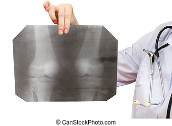 nurse holds X-ray picture with human knee joint