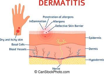 o, estilo, dermatitis, esquema, plano, gráfico, diagrama