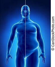 obésité, concept, rayon x