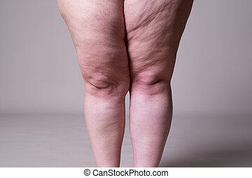 obésité, jambes, excès poids, corps femelle, graisse, femme