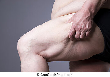 Obesity female body, fat woman legs close up