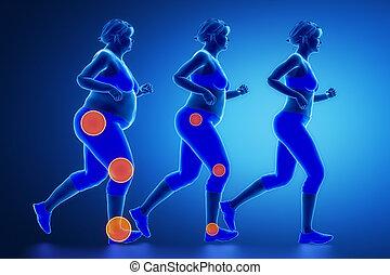 Obesity joint problem concept