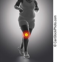 Obesity knee joint ache