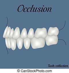 occlusion side view - bite, closure of teeth - incisor,...
