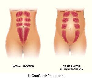 oder, trennung, diastasis, recti, abdominal