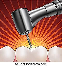 odontólogo, perfurar, dente