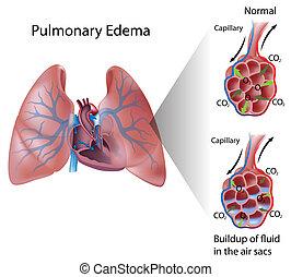 oedème, pulmonaire, eps10