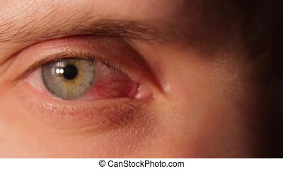 oeil, rouges, malade, humain