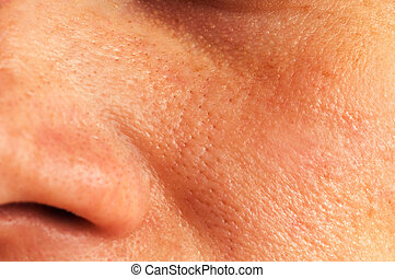 Oily skin on the face - Oily skin and pores on the face of...