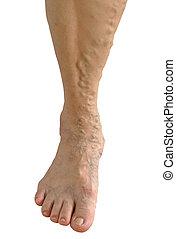 Old Asia woman leg on white background, Varicose vein
