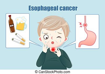 Cartoon middle-aged man suffer a sore throat with foods which are easily lead to esophageal cancer cause