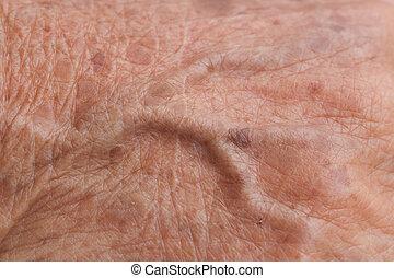 old woman skin blood vessel