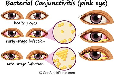 olho, mostrando, diagrama, conjunctivitis, human, bacteriano