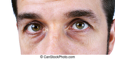 olhos, cansadas, homem, vey