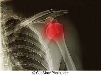 ombro, raios x, imagem, conjunto, deslocação, ferimento, ou,...