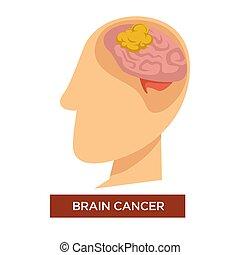 oncology, kanker, ziekte, hersenen, vector, chemotherapy