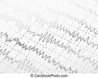 ondas cerebrales, en, encephalogramme, eeg