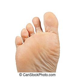Athlete's foot, Tinea pedis - One foot on a white...