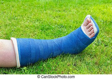 One gypsum leg of boy on grass - One blue gypsum leg of ...