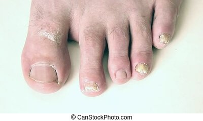 ongles orteil, fungal, fungus., infection., clou
