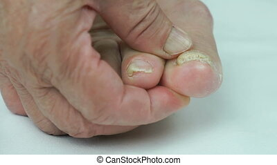 Onychomycosis. Fungal infection of nails of old woman's feet