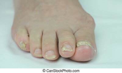 Onychomycosis. Fungal infection of toenails of woman's feet close-up