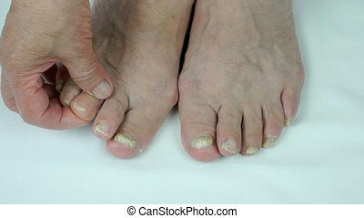 Onychomycosis. Fungus infection on nails of foot