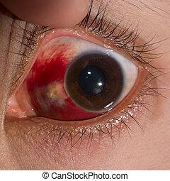 oog examen