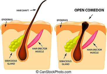 Open comedones. black head acne. The structure of the skin. Infographics. Vector illustration on isolated background.