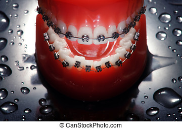 Open dentures with braces , water drops background