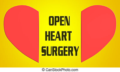 OPEN HEART SURGERY concept - 3D illustration of OPEN HEART ...