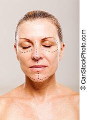 operação, paciente, cosmético, femininas, antes de