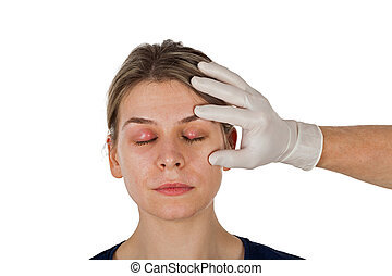 Ophthalmic infection. Hordeolum on upper eyelid, shown by ...