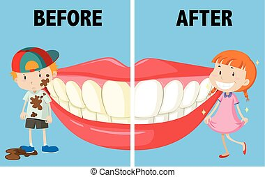 Opposite words before and after illustration