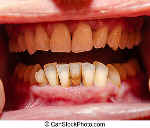Oral cavity, groomed teeth with signs of periodontal disease, close-up
