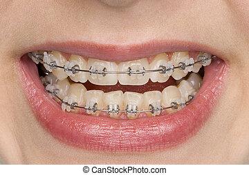 oral hygiene - beautiful teeth with brace