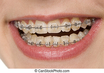 oral hygiene - beautiful teeth with brace