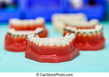 Orthodontic invisible and wire braces on model