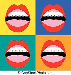 orthodontics., bretels, correctief