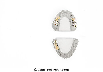 Orthopedic dentistry background. dental prosthetics background. concept of artificial teeth. teeth isolated